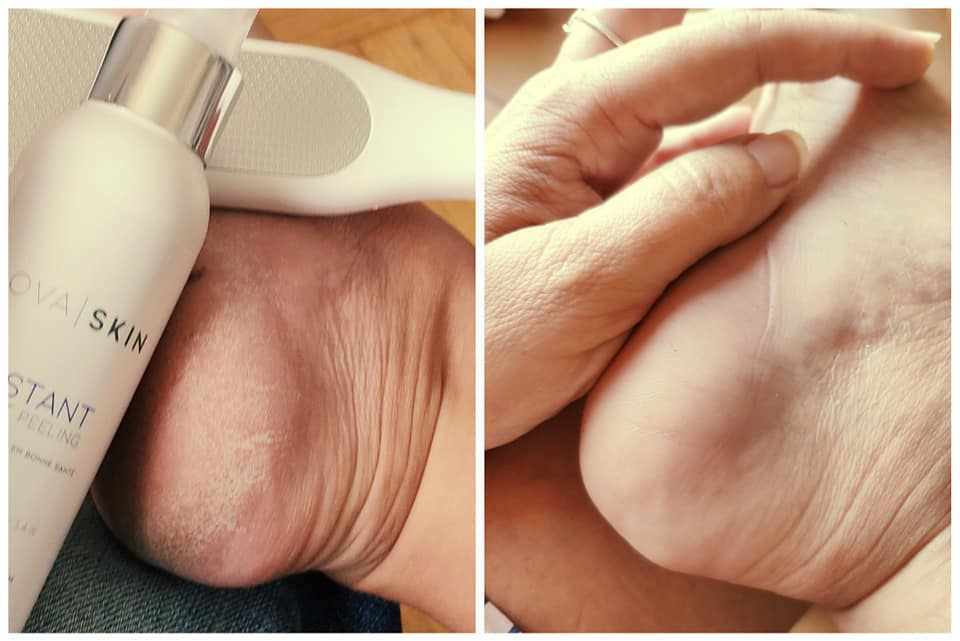 avis-test-gommage-peeling-pieds-lovaskin-avant-apres
