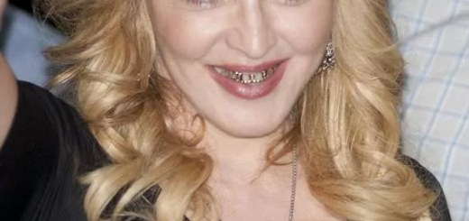 golden-braces-grill-girl-madonna-08