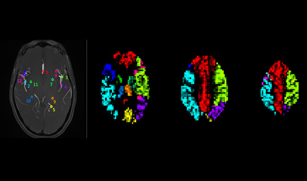 Using the Body's Magnetic System to Improve MRI Diagnoses