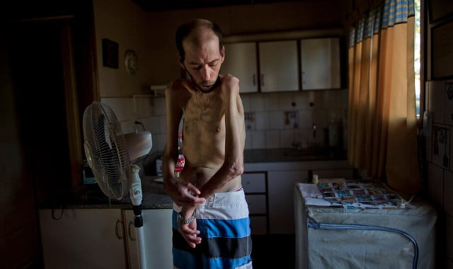 """Former farmworker Fabian Tomasi, 47, of Basavilbaso, in Entre Rios province, Argentina, March 29, 2013. Tomasi suffers from polyneuropathy. """"I prepared millions of liters of poison without any kind of protection, no gloves, masks or special clothing. I didn't know anything. I only learned later what it did to me, after contacting scientists,"""" he said. CREDIT: Natacha Pisarenko/AP"""