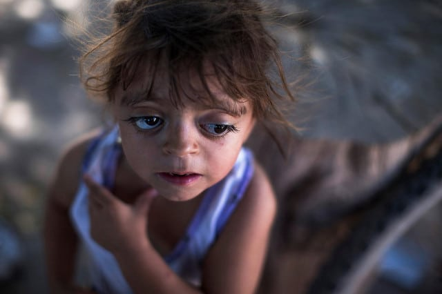 """Camila Veron, 2, born with multiple organ problems and severely disabled, stands outside her home in Avia Terai, in Chaco province, Argentina, March 31, 2013. Her mother was told, """"the water made this happen because they spray a lot of poison here."""" CREDIT: Natacha Pisarenko/AP"""