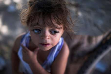 "Camila Veron, 2, born with multiple organ problems and severely disabled, stands outside her home in Avia Terai, in Chaco province, Argentina, March 31, 2013. Her mother was told, ""the water made this happen because they spray a lot of poison here."" CREDIT: Natacha Pisarenko/AP"