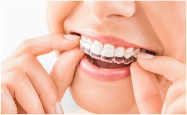 Bleaching mittels Zahnschienen für zuhause