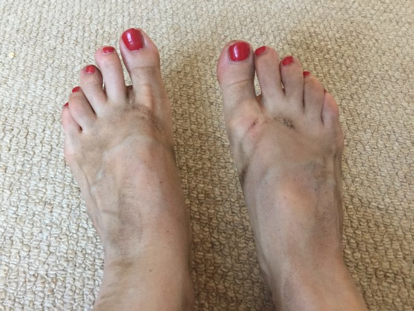 Very dirty feet after strawberry picking