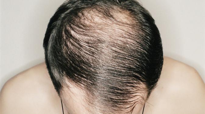 9 Faktor Mengapa Rambut Lelaki Mudah Gugur & Cepat Botak