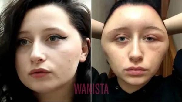 Alangkah Terkejut Bila Pewarna Rambut Ubah Wajah Wanita Jadi Bengkak Teruk!