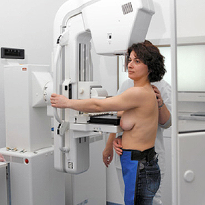 Bevolkingsonderzoek borstkanker dient ook kritische te worden benaderd, in plaats van een klakkeloze acceptatie..!