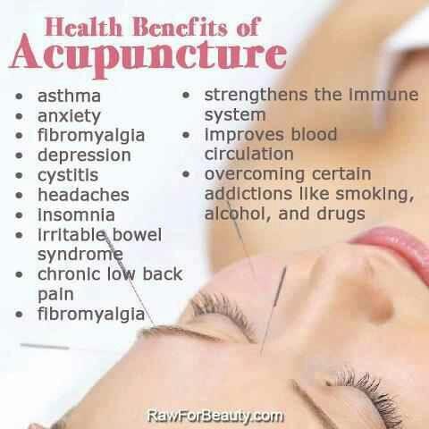 acupuncture-benefits