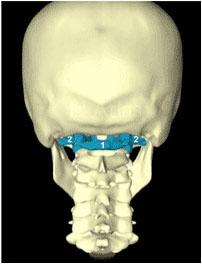 De positie van de Atlas (blauw) als start/sluitstuk van onze wervelkolom tegen de schedel.