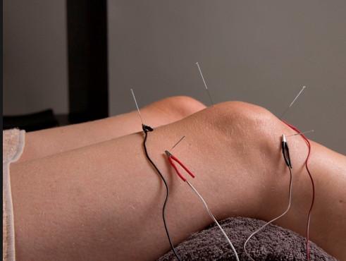 knie acupunctuur
