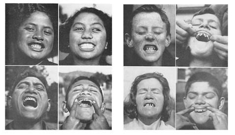 Over de hele wereld bezocht Weston Price volkeren, en fotografeerde hun gebitten.