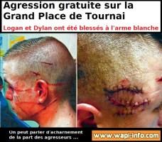 Tournai : Logan et Dylan Lefebvre (19 ans) sont les victimes de l'agression de la Grand-Place