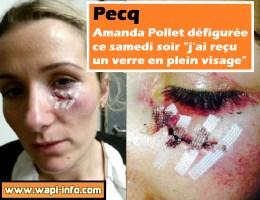 "Pecq : Amanda Pollet défigurée ce samedi soir ""j'ai reçu un verre en plein visage"""