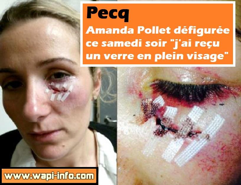 Amanda Pollet