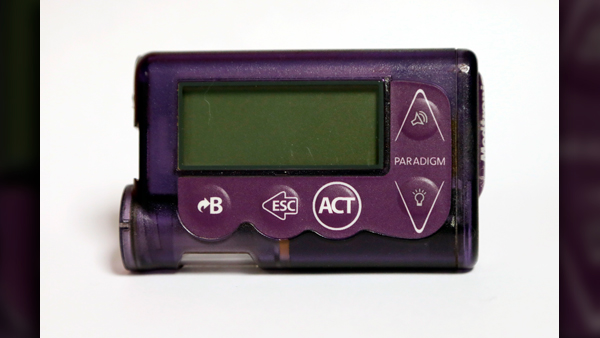 insulin_pump_1543418191177.jpg