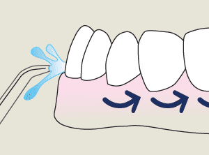 Move the flosser tip along the gums