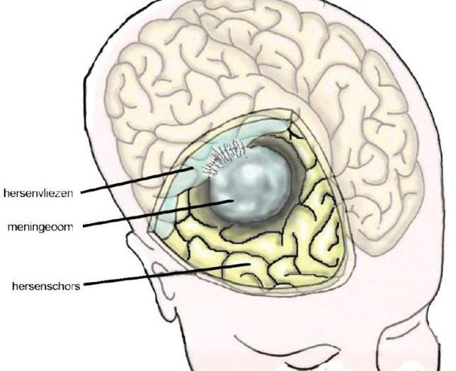Hersenoperatie