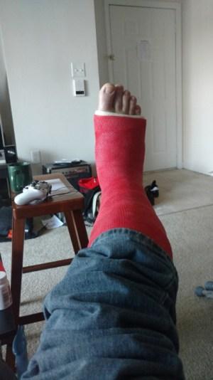 My lovely leg cast.