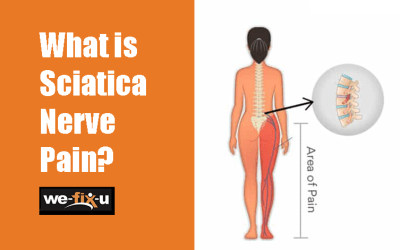 What is Sciatica Nerve Pain – Causes and Symptoms