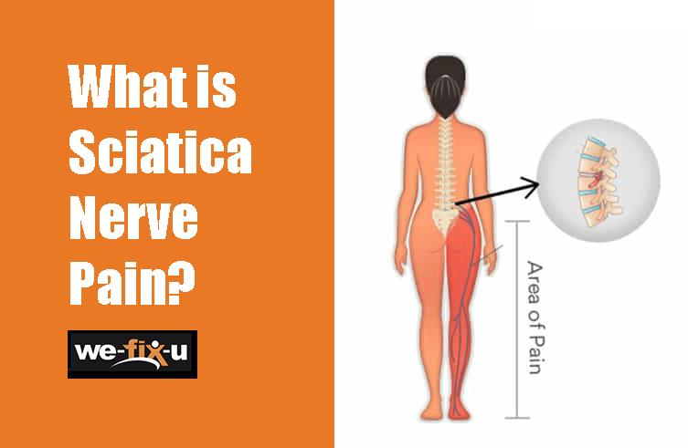 person showing sciatica nerve