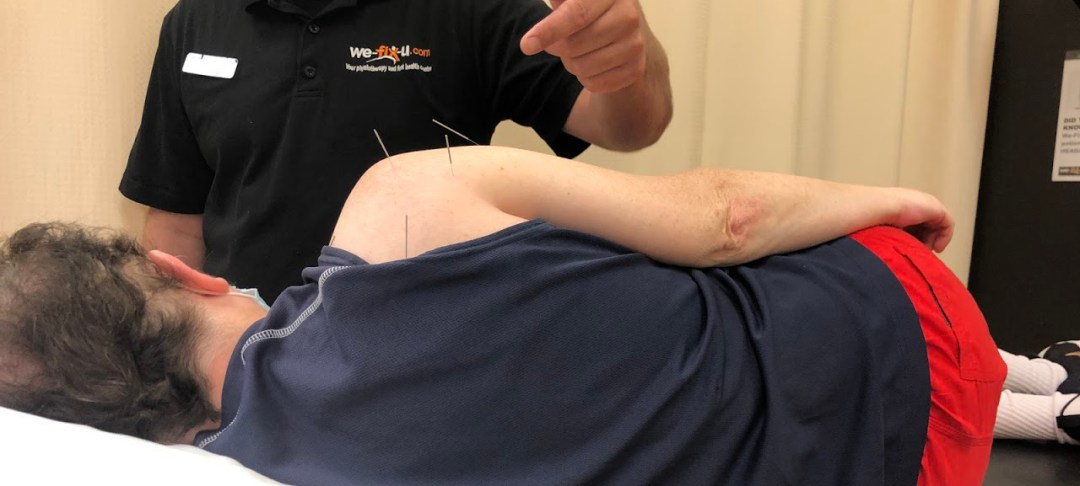 wefixu clinic physiotherapist treating patient shoulder injury with acupuncture needles