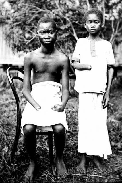 Mola_Yoka_perdieron_manos_torturas_soldados_Congo.jpg