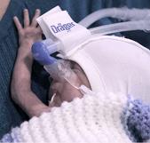 Preterm baby - evaluation case studies