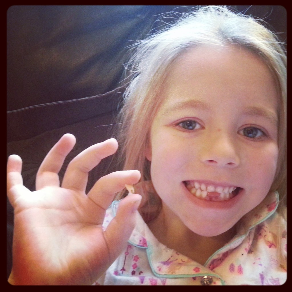 Can You Believe Tooth Number 2!