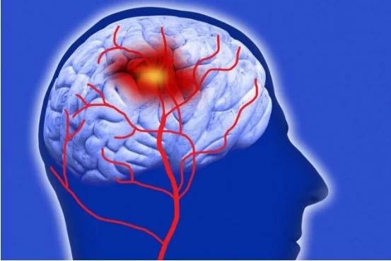 stroke-rehabilitation