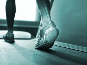 Estudiar fisioterapia tiene salida