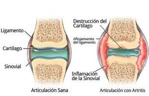 6 tips om artritis niet te laten verergeren