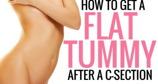 How to get Flat Tummy after C-Section