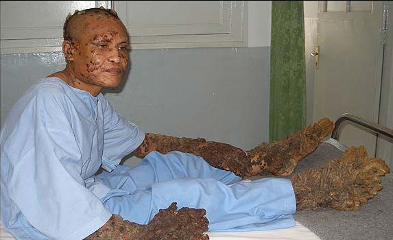 https://i1.wp.com/www.weirdasianews.com/wp-content/uploads/2008/04/tree-man-surgery.jpg