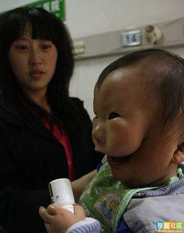 doubleface 2 Baby in China Born with Second Face picture