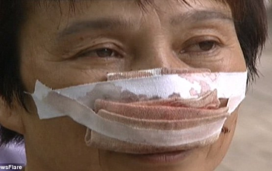 Husband Bites Off Wife's Nose For Not Answering Phone