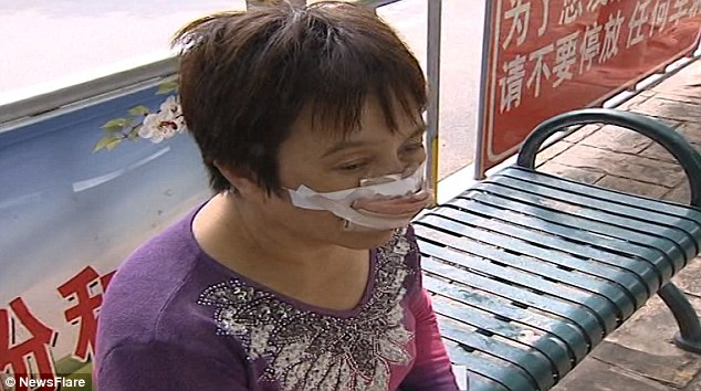 Woman missing nose on her way to see specialist doctors