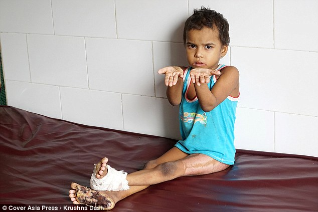 India children surgery Olmstead Syndrome skin growth genetic disorder