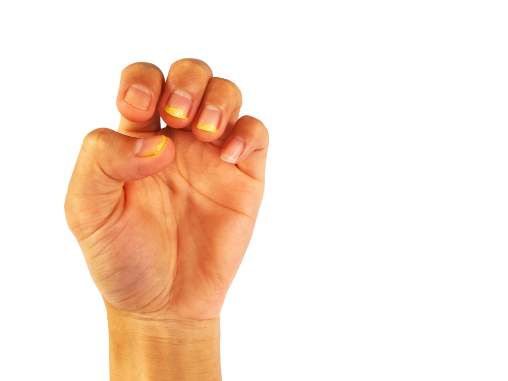 How Your Fingernails Can Show Signs Of Disease