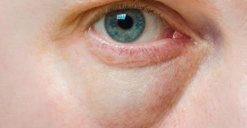 how to get rid of bags under eyes 800x416 - 28 REMEDIES TEGEN WALLEN ONDER DE OGEN