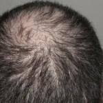 Hormonell bedingter Haarausfall