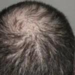 Beratung bei Haarausfall