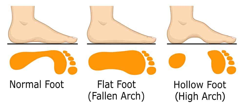 women with high arches, Flat and Wide Feet