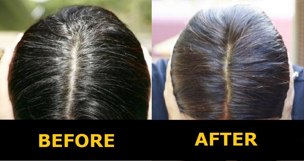 7 Simple Home Remedies To Cure Grey Hair Fast