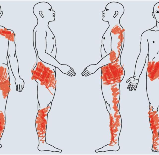 Zu den Symptomen einer Fibromyalgie gehören Schmerzen in mehreren Körperregionen, Druckempfindlichkeit, Schlaf- und Verdauungsstörungen und depressive Verstimmungen