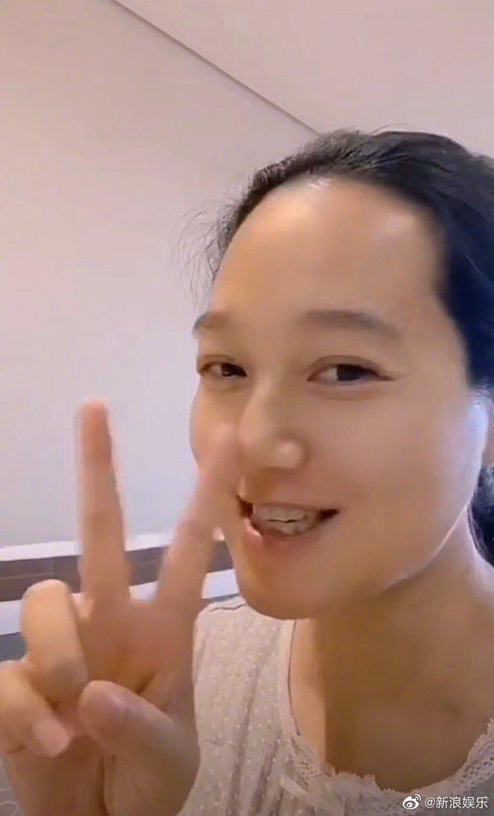 39 岁朱丹晒入院待产,面目浮肿到像换了个人