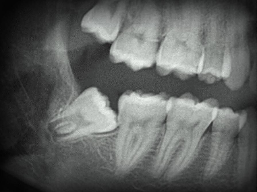 x-ray of impacted wisdom tooth extracted by dr. krakora