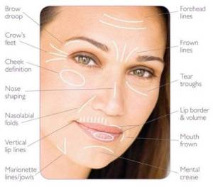Are You A Sinker, Sagger or Wrinkler? – Facial Aging Types