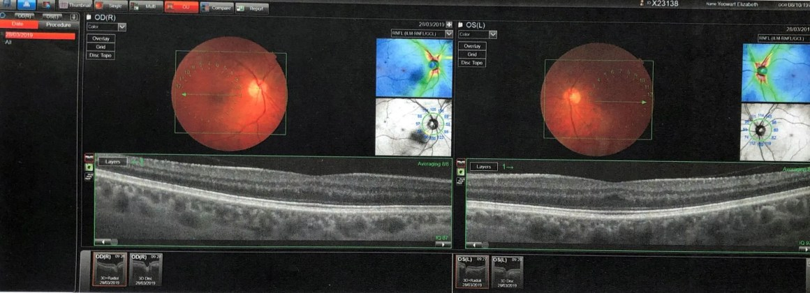 optical equipment used in eye examination