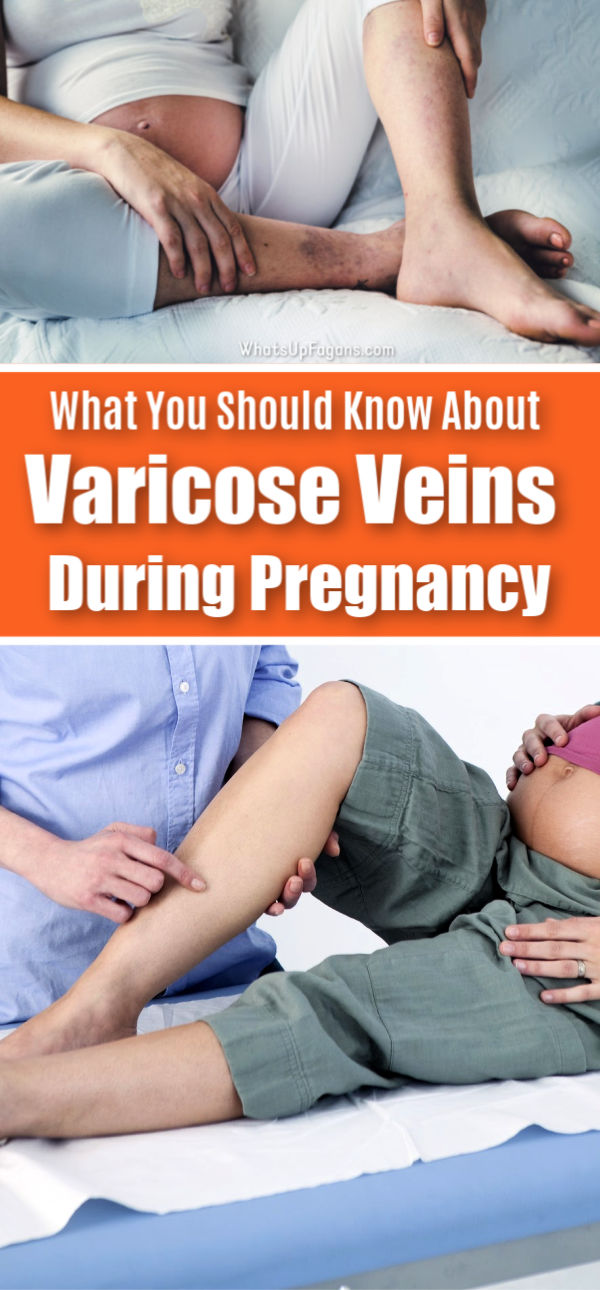 Dealing with a varicose vein pregnancy or worried about having varicose veins during pregnancy? Here's everything you need to know about both regular and vulvar varicose veins in pregnancy: what they are, how to prevent them, how to ease the pain, and how to get rid of them for good.  #pregnant #pregnancy #varicoseveins #veins #health