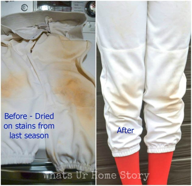 My Weekly Stain Battle